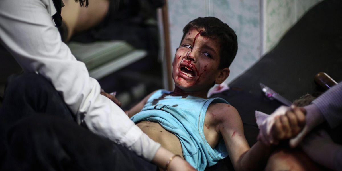 Syrien Schulkind Dpa Mohammedbadra