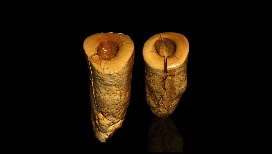 Modifizierte Pulpenhöhle bei zwei Schneidezähnen