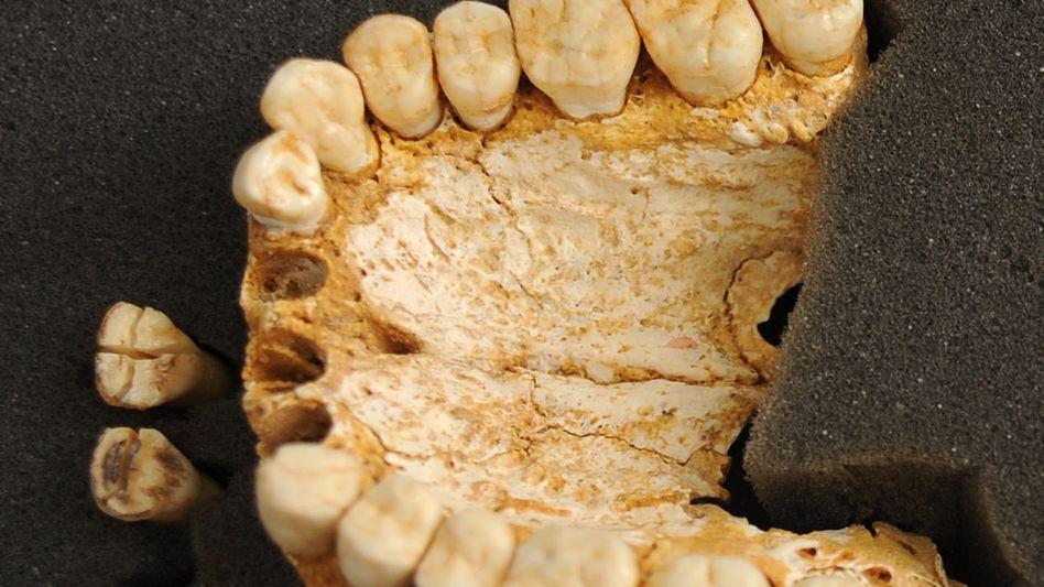 Neandertaler-Gebiss aus der El-Sidrón-Höhle: Spuren von Heilpflanzen entdeckt