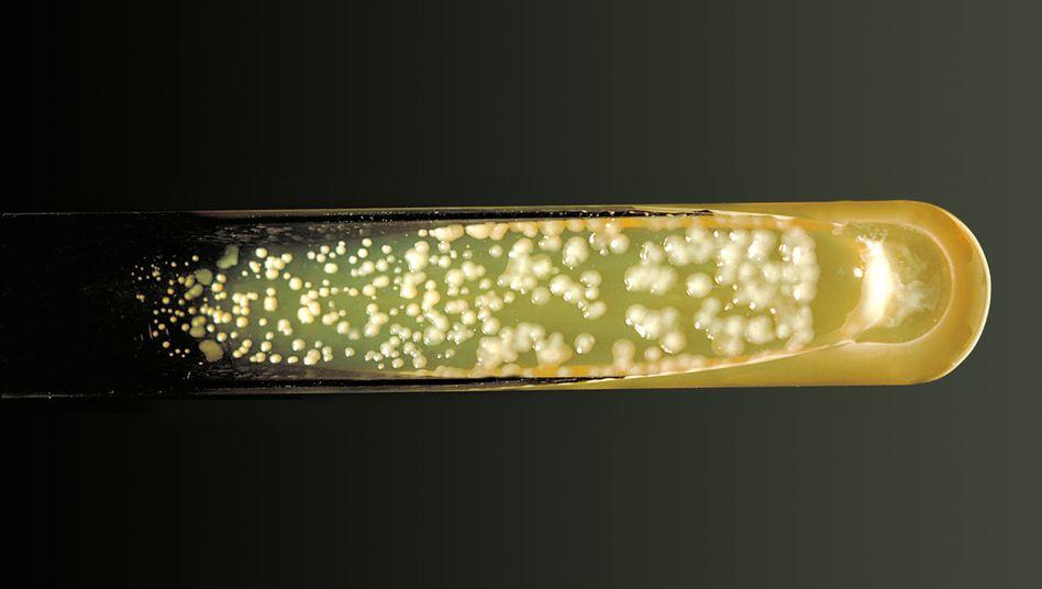 Gefährlicher Hefepilz: Im Labor wird er kultiviert.