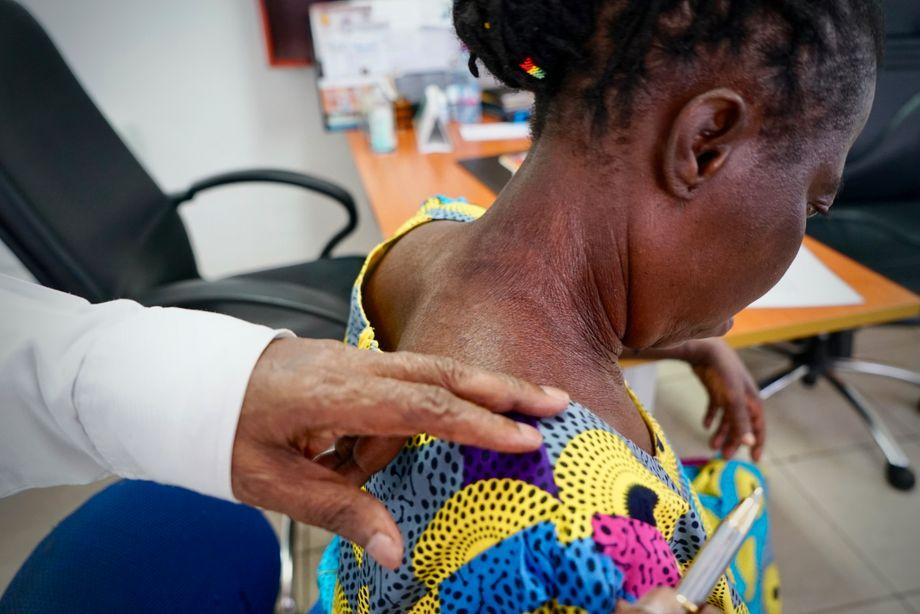 """Delle zeigt die zerstörte Haut seiner Patientin. Die 55-Jährige wollte """"besser und frischer"""" aussehen, hat deswegen am gesamten Körper Bleaching-Creme aufgetragen. Sie habe nicht gewusst, wie schädlich das für ihre Haut sei"""
