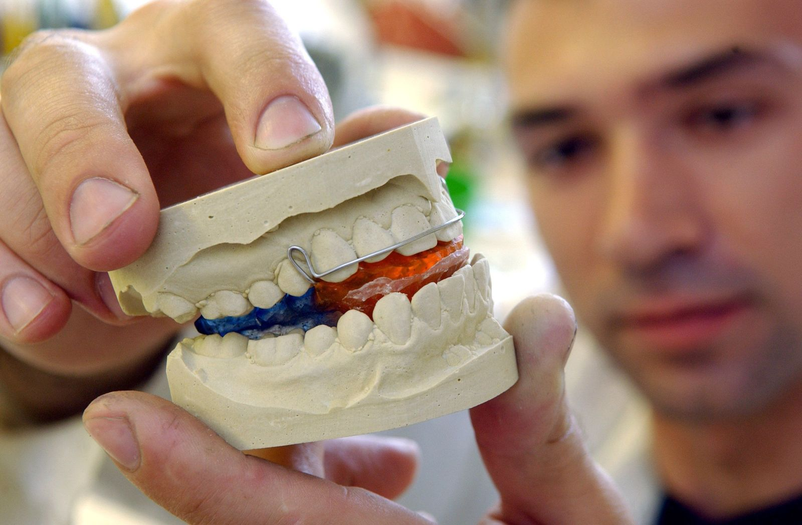 Zähne aus dem Nachbarland