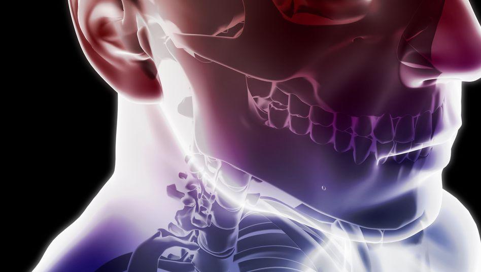 Nacken und Kiefer (Illustration): Die Symptome einer CMD lassen sich bei den meisten Patienten mit einfachen Mitteln behandeln