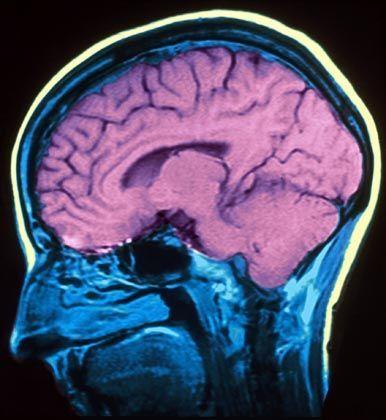 Funktionelle Magnetresonanztomographie: Hirn-Aktivitätsmuster verraten, was jemand sieht