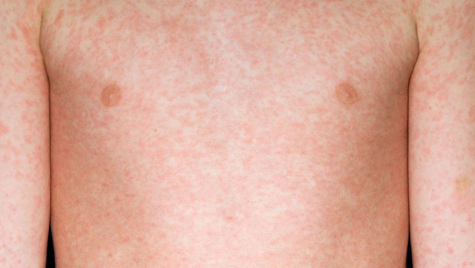 Maserntypischer Ausschlag: Bis Infizierte krank werden, können bis zu zehn Tage vergehen