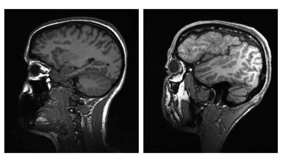 Unauffälliges, auffälliges MRT: Falsch gefaltete Hirnrinde