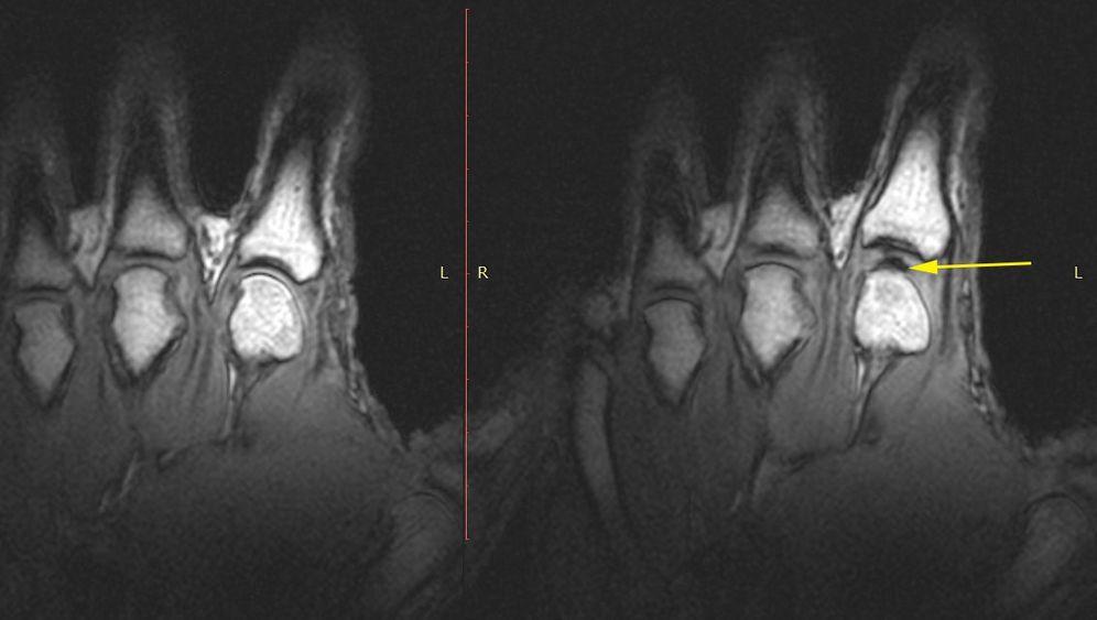Gelenke: Blick in den knackenden Finger