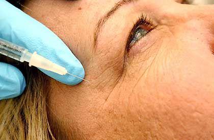 Botox-Injektion: Zehn depressiven Patientinnen das traurige Stirnrunzeln genommen