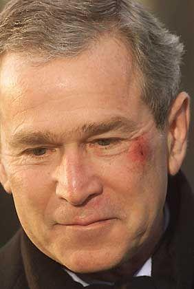 George W.Bush: Leichte Blessuren nach dem Ohnmachtsanfall