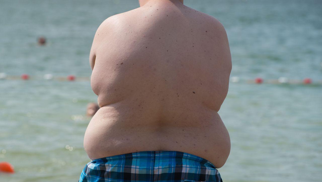 Weltgrößte Covid-19-Beobachtungsstudie: Forscher weisen höheres Sterblichkeitsrisiko durch Fettleibigkeit nach