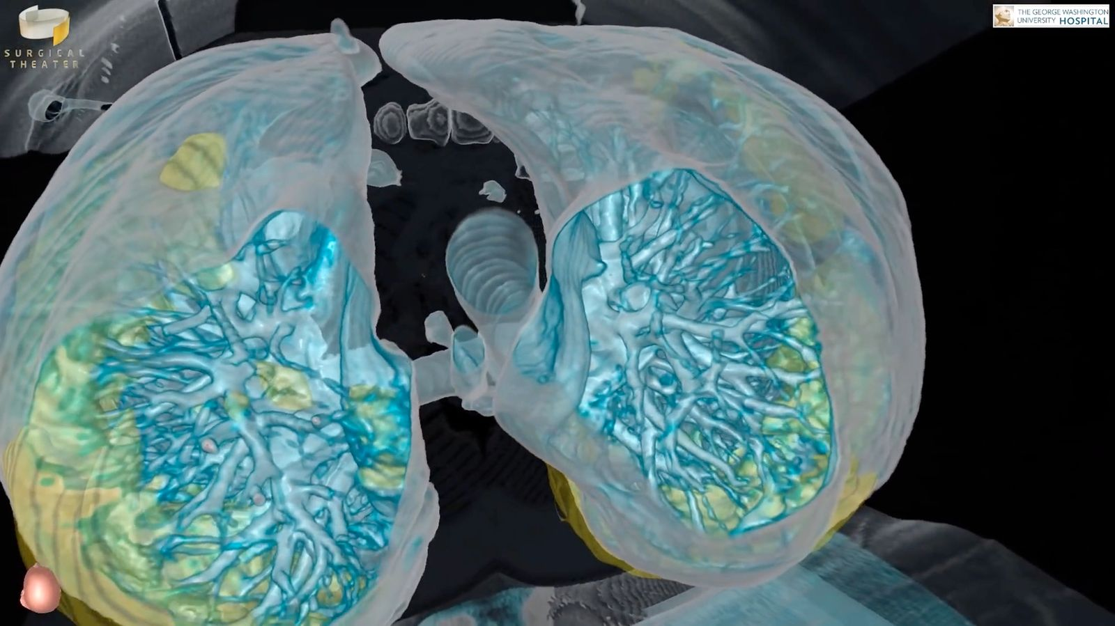Virtual reality video shows the damage caused to lungs by COVID-19