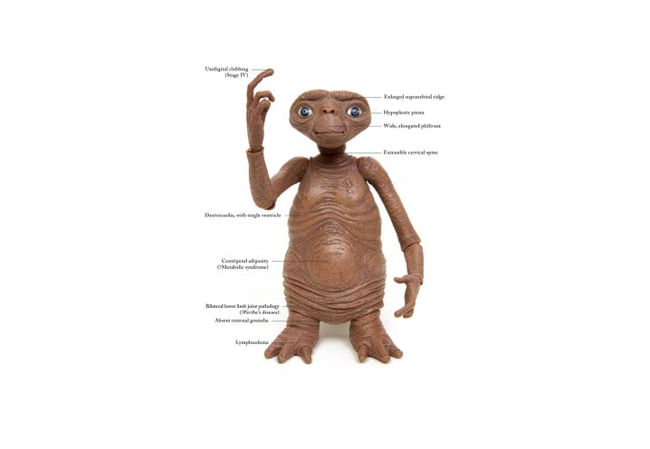 "Der rätselhafte Patient ""E. T."" im Detail: Auffällige Befunde"
