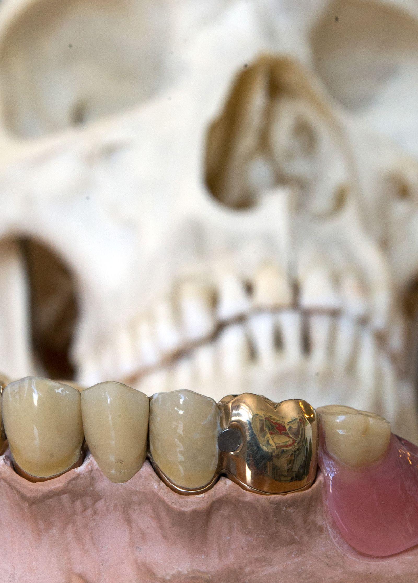 Zahngold für den guten Zweck