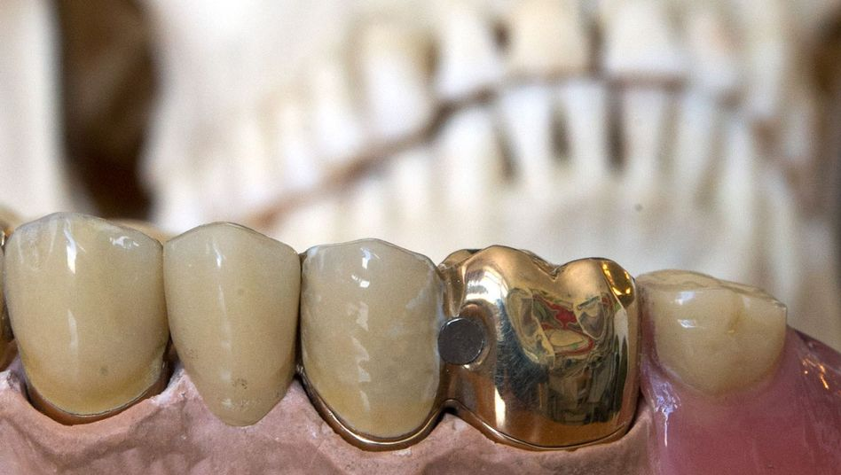 Ownership of gold teeth and articifial joints after death is a legal gray area in Germany.