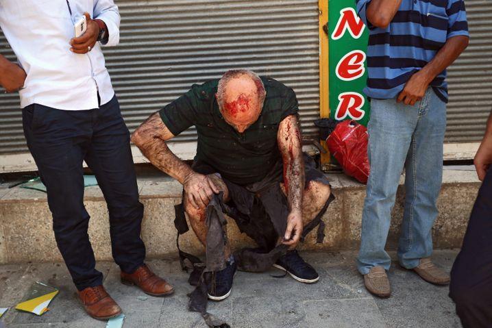 Ein Verletzter in Suruc: Behörden sprechen von rund hundert Verwundeten