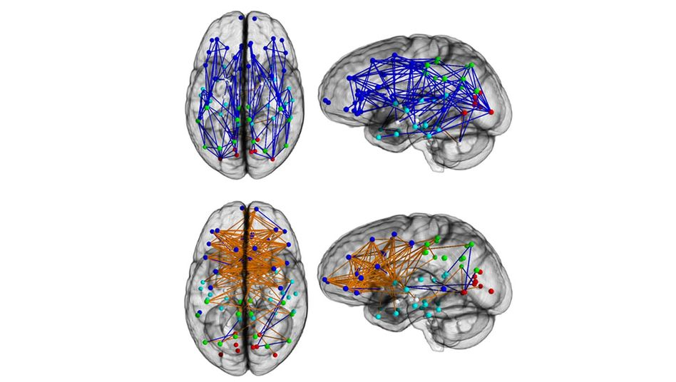 Kleine Unterschiede: Verknüpfungen beider Hirnhälften (orange) sind bei Frauen stärker ausgeprägt, Verknüpfungen innerhalb von Hirnregionen sind bei Männern häufiger (blau)