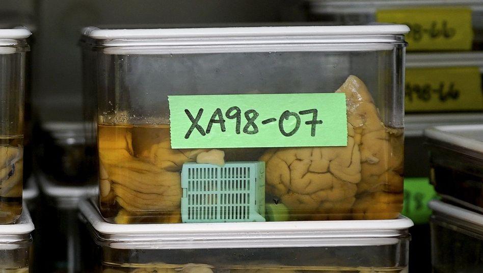 Gehirnproben aus einer US-Studie, Februar 2018: Immer mehr Forscher versuchen, Alzheimer als eine das Gehirn verändernde Krankheit zu ergründen - und nicht als bloßes Demenz-Syndrom, das Verhalten verändert.
