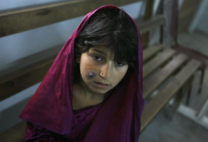 Mädchen mit Leishmaniose in Kabul (2007)
