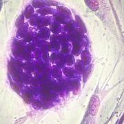 Embryonale Stammzellen (vom Menschen): Forscher wollen die Zellen von einem Mischwesen aus Mensch und Kuh gewinnen