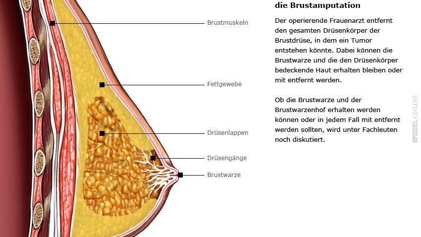 Die Brust: Bei hohem Krebsrisiko amputieren und wieder rekonstruieren