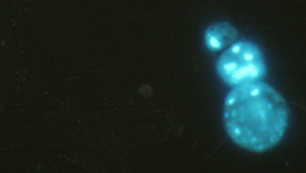 Medizin-Nobelpreis 2009: Suche nach den Erbgut-Schutzkappen