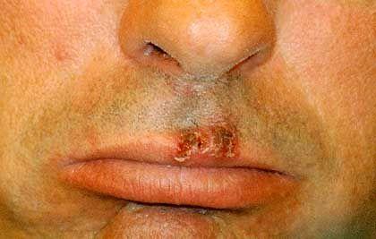 Lippenherpes: Ein Großteil der Bevölkerung trägt das Virus in sich