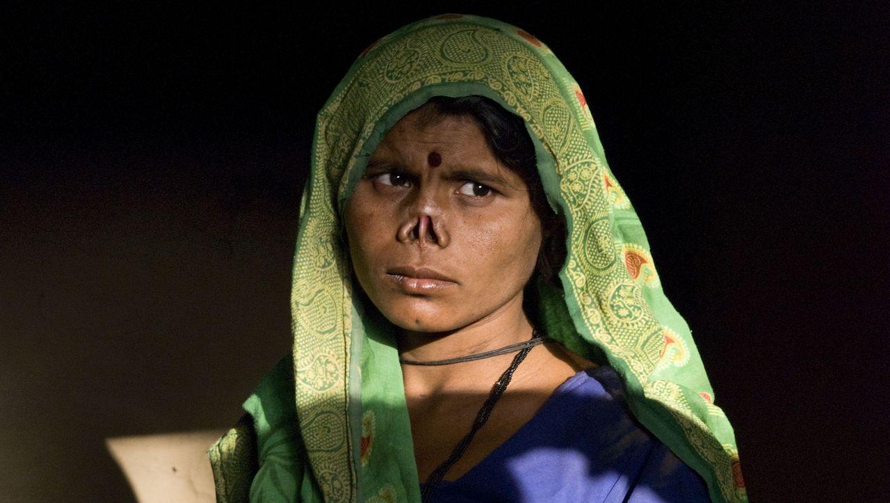 """Gewalt gegen Frauen in Indien: """"Mein Mann schnitt mir die Nase ab"""""""