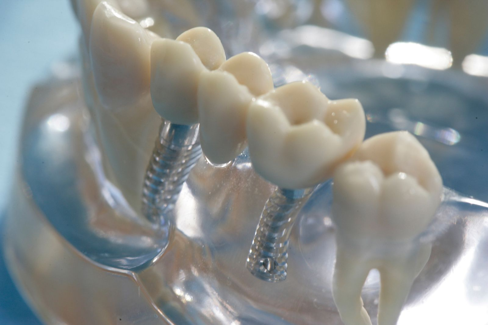 EINMALIGE VERWENDUNG Zahnimplantate