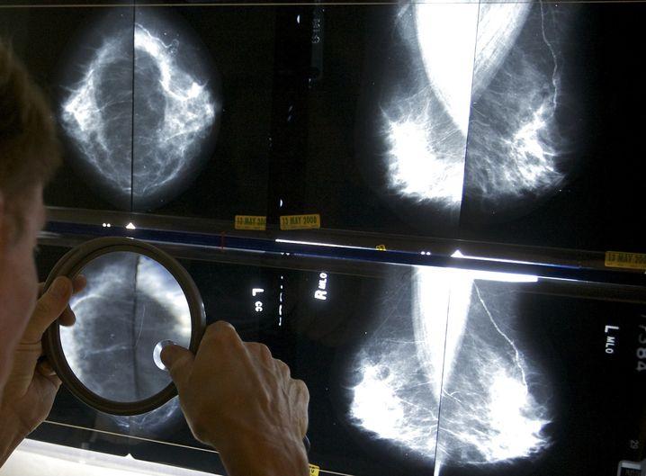 Mammografie-Aufnahmen: Früherkennung ist nicht das gleiche wie Prävention