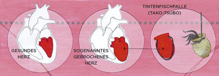 Gebrochenes Herz: Bei Menschen mit Broken-Heart-Syndrom verformt sich die linke Herzkammer