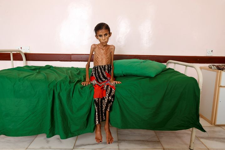 A 12-year-old, malnourished girl at a clinic the northwest province of Hajjah in northwest Yemen: Who is responsible for the catastrophe?