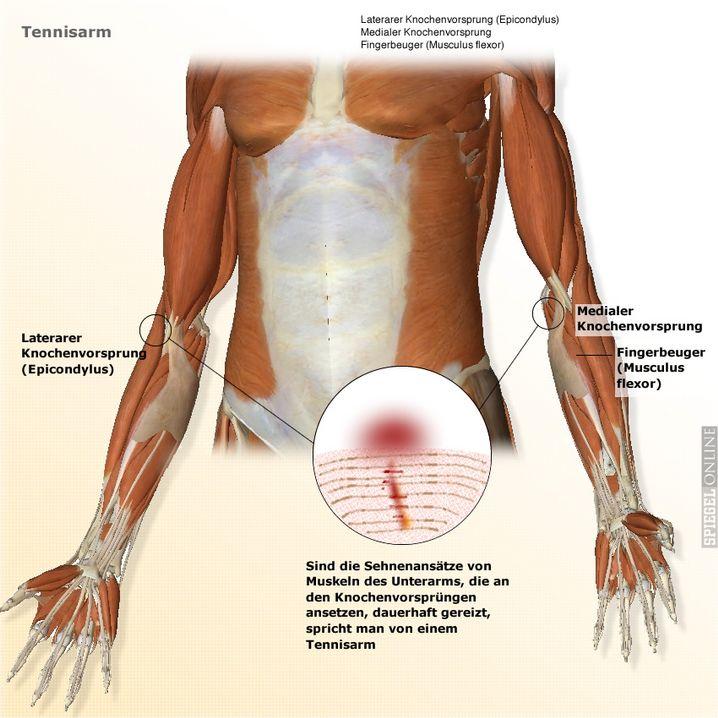 Tennisarm (grafische Illustration): Zur Vollansicht bitte klicken