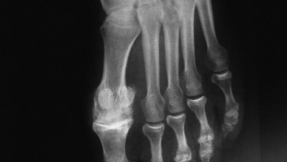 Röntgenbild eines Fußes mit ersten Anzeichen für Gicht: Oft ist der große Zeh betroffen