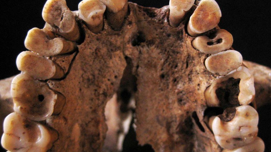 Etwa 15.000 Jahre alter Oberkiefer: Karies bereits bei Jägern und Sammlern