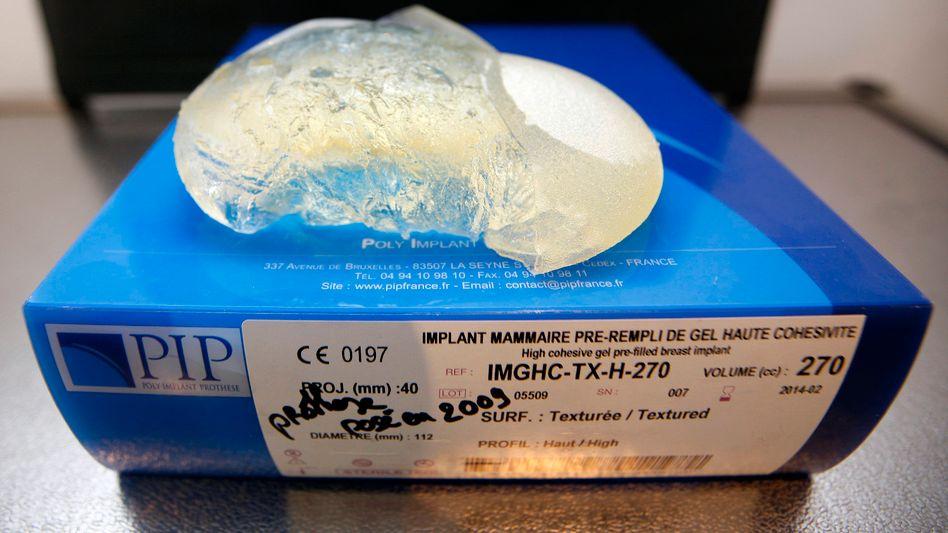 Defektes Brustimplantat: Dieses Exemplar musste einer Patientin herausoperiert werden