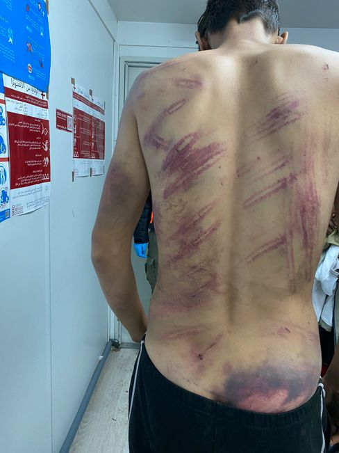 A migrant after attempting to cross the border: There have been thousands of reports of violence at the border.
