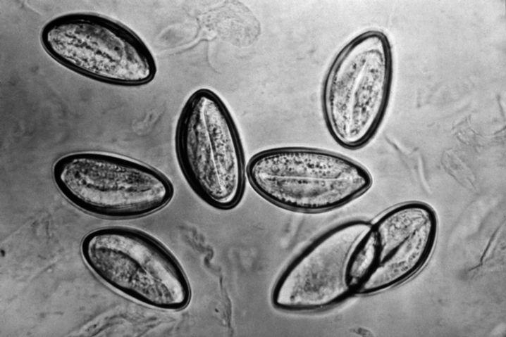 Eier von Madenwürmern, mikroskopische Aufnahme