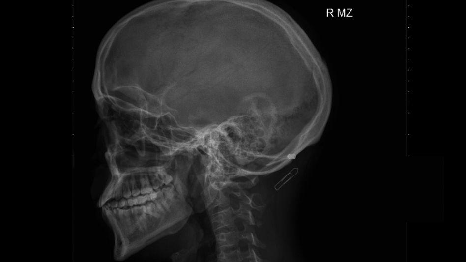 Röntgenaufnahme von Yasin Ali W.: Projektil im Kopf