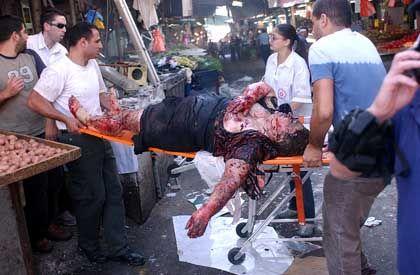 Tel Aviv: Sanitäter tragen ein Opfer vom Tatort