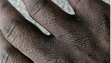 Apollons verletzter Finger