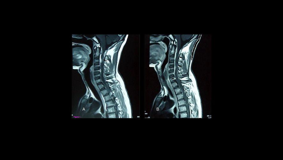 Kernspin-Bild der Halswirbelsäule: Woher kommen die Flecken im Rückenmark (s. Pfeile)?