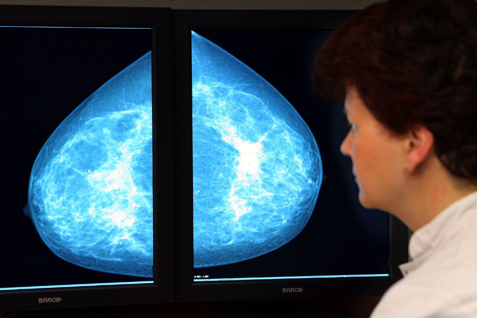 Mammographie / Brustkrebs Screening
