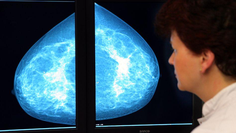 Mammografie: Regelmäßiges Screening erst ab 50 Jahren empfohlen