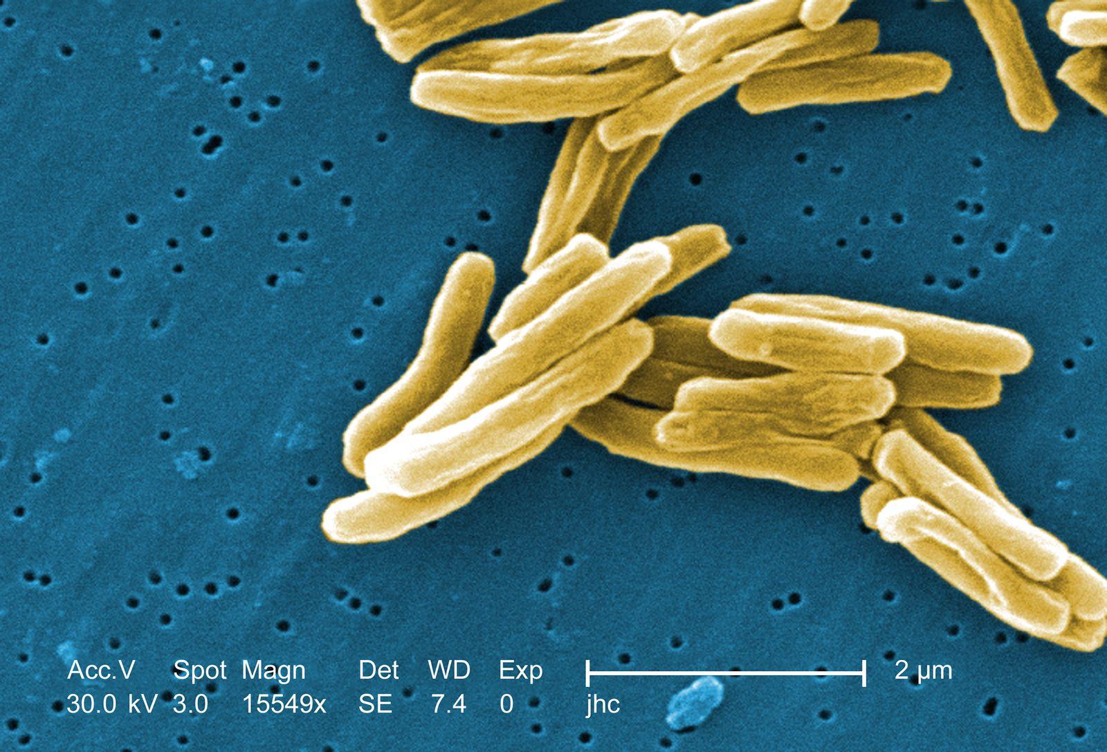 Mycobacterium tuberculosis / Tuberkulose