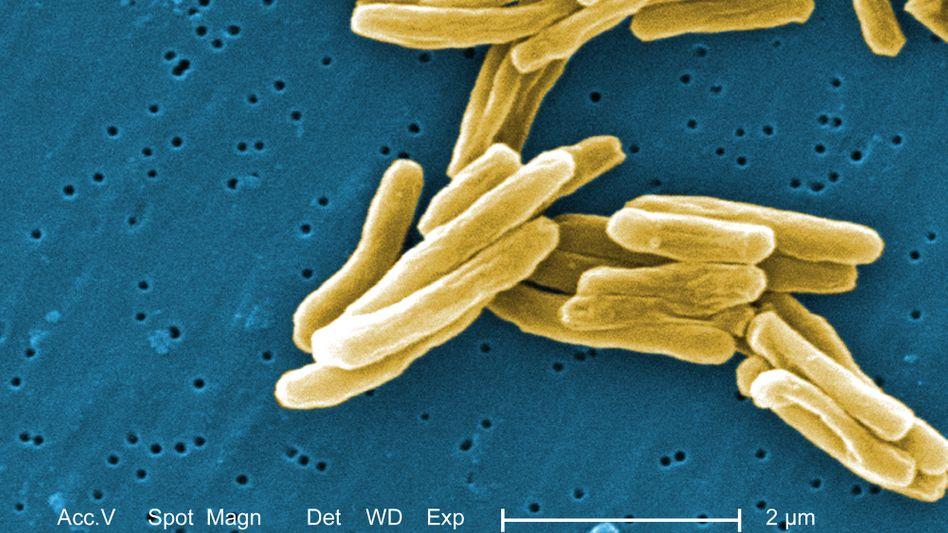 Tuberkulose-Bakterien unter Mikroskop: Viele Resistenzen gegen Antibiotika