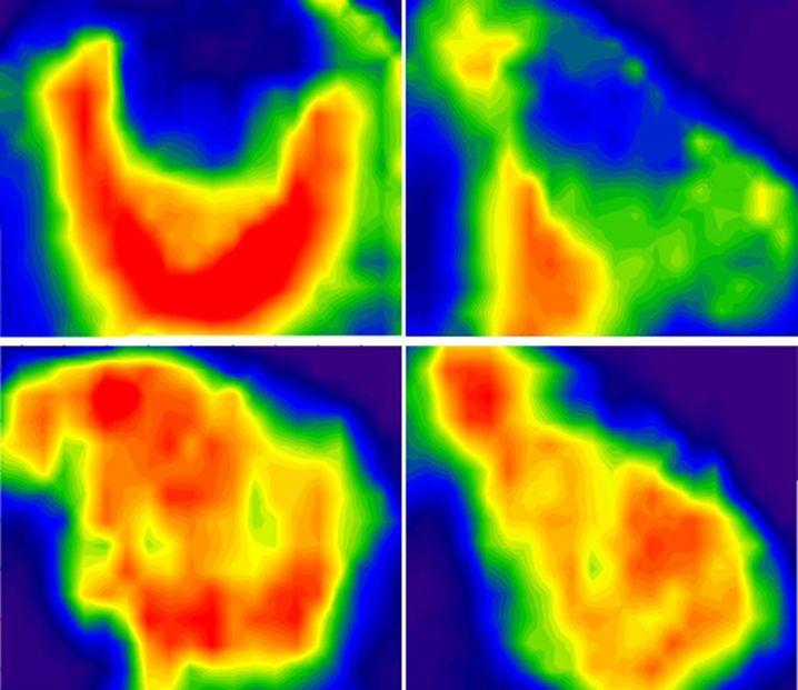 Narben und Entzündung im Hirn von Mäusen nach dem Schlaganfall (oben), Regeneration (unten)
