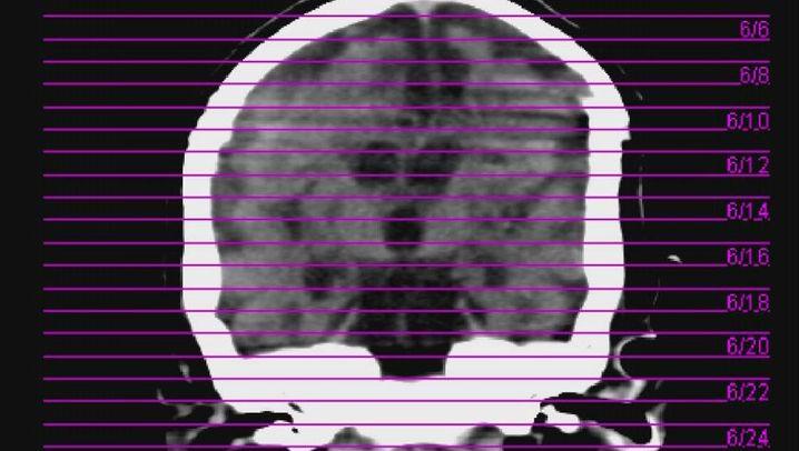 Privatklinik XCell: Chronologie eines vermeidbaren Todesfalls