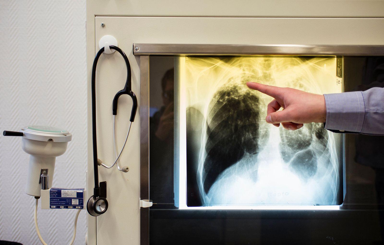 Tuberkulose-Zentrum
