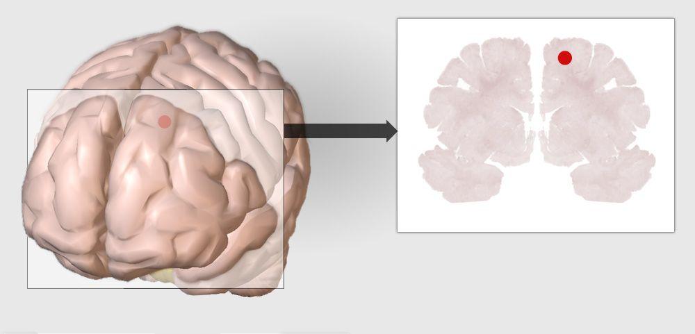 Infografik Gehirn