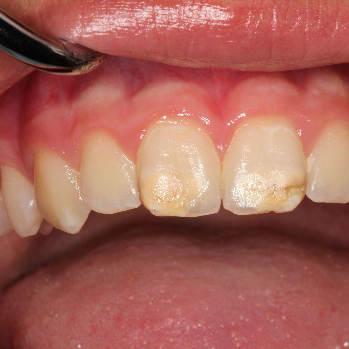 Mit 30 zähne schlechte Schlechte Zähne: